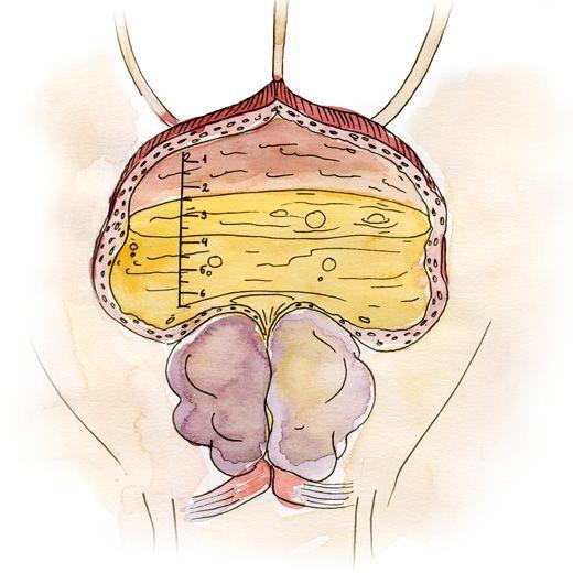 Аденома простаты операция и удаление аденомы простаты