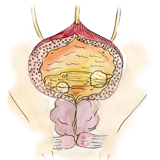 Main cause: Stone formation in the bladder due to urine outflow disruption caused by other conditions, such as benign prostatic hyperplasia or urethral stricture.