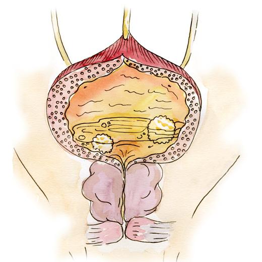 Основная причина: образование камня в самом мочевом пузыре вследствие нарушения оттока мочи, например, из-за аденомы простаты или стриктуры уретры