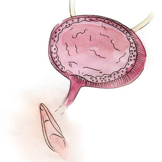Le resserrement de l'urètre en norme pendant une relation sexuel ne permet pas aux bactéries d pénétrer dans la vessie