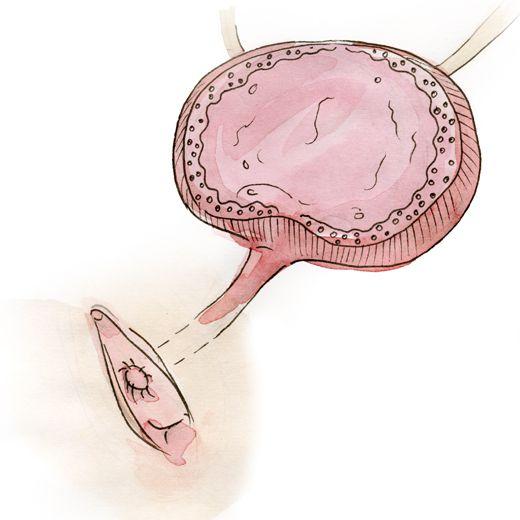 Malposition de l'urètre: l'orifice de la vessie est situé plus bas et il bâille