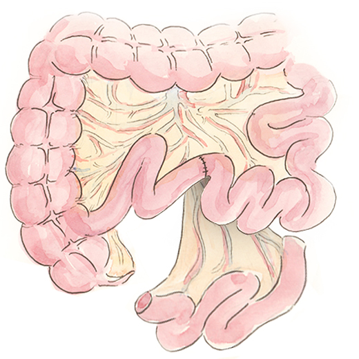 Restoring the integrity of the small bowel