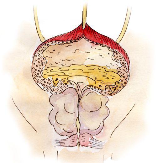 Аденома простаты симптомы лечение когда нужна операция
