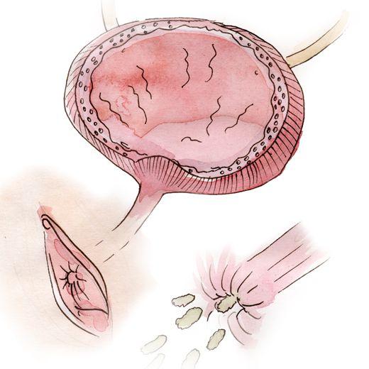 L'orifice de l'urètre s'ouvre encore plus lors de l'acte sexuel, ce qui pérmet aux bactéries de pénétrer facilement dans la vessie