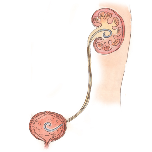 Результат мочекаменной болезни: выпадение камней из почек или мочеточников в пузырь и дальнейшее его увеличение.