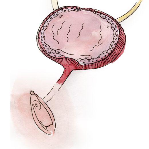 L'état de l'urètre, 3 mois après l'opération