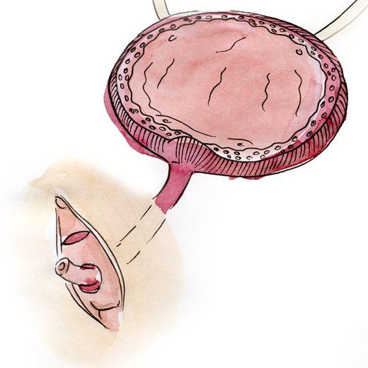 L'urètre est détaché des tissus qui l'entourent sur une longueur de 2,5-3