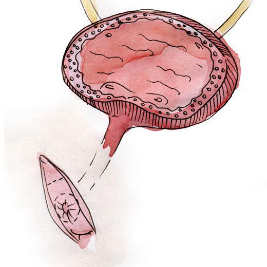 Transposition de l'urètre: deux coupes moyennes sont effectuées